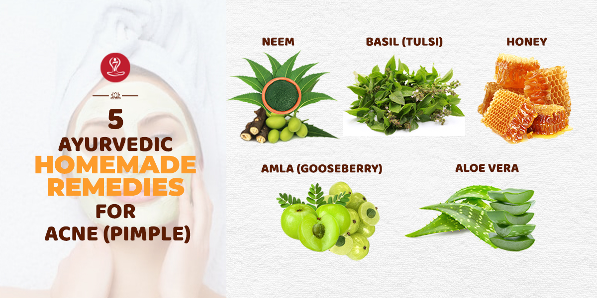 Remedies for Acne